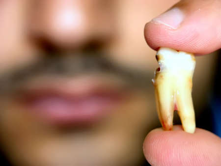fillings: A man holding his damaged extracted teeth.