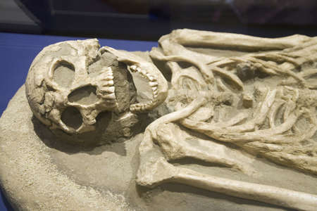 natural sciences: Bones of JR102C, a young man with a bullet shattered leg, an original English Colonist from 1607 Jamestown Colony, discovered in 1996, at James Fort, Jamestown, Virginia Editorial