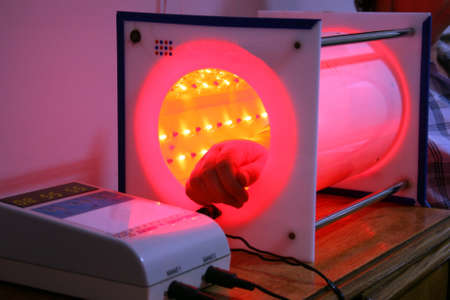 Treatment by the laser, hand of the patient in a laser tunnel Stock Photo - 15326915