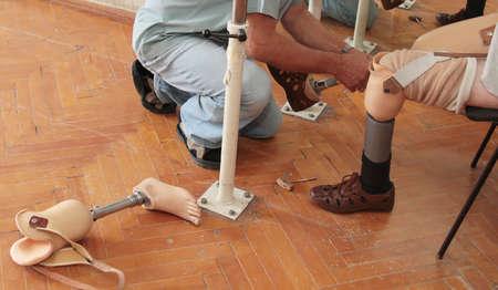 Hands machinery governing prosthetic leg on man Stock Photo