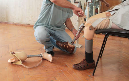 Hands machinery governing prosthetic leg on man Stock Photo