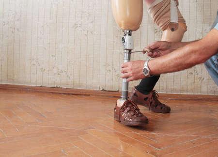 medical distribution: Hands machinery governing prosthetic leg on man Stock Photo