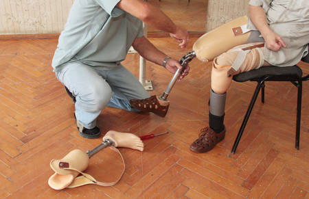 medical distribution: Hands machinery governing prosthetic leg on man Stock Photo
