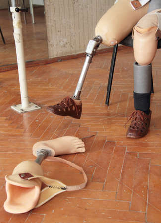 wearer: Male prosthesis wearer training in a special interior area Stock Photo