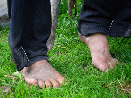 dirty feet: Dirty bare feet of old man on green grass Stock Photo