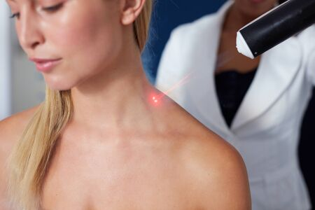 resurfacing: Closeup of localized cryotherapy session to the neck of young woman. Ice cold nitrogen vapors applied to neck