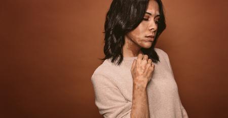 Vitiligo beïnvloedde jonge vrouw in studio. Wijfje met slecht tan probleem dat zich op bruine achtergrond bevindt. Stockfoto