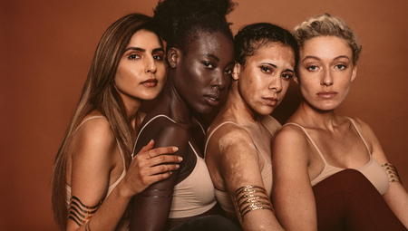 Portrait of young women with different skin types on brown background. Diverse group of females looking at camera.