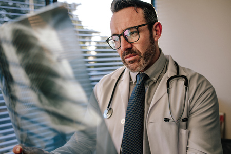 Concerned male doctor looking at chest x ray in his office. Doctor looking at scan, examining X-ray of patient lungs. Stock Photo