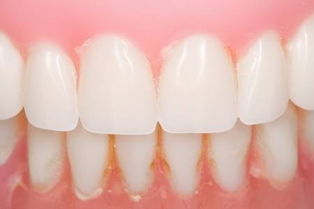 used dental prosthesis closeup with visible plaque Stock Photo