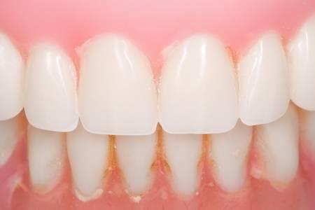 prothese: verwendeten Zahnersatzes Nahaufnahme mit sichtbaren Plakette