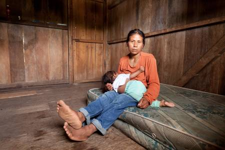 poor people: Woman from Amazonia breastfeeding. Seriously affected by strabismus. Stock Photo