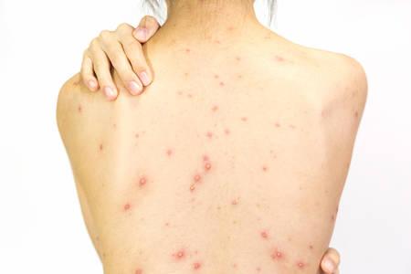 Primer plano de la parte posterior de la niña de ampollas, cicatrices y erupciones causadas por el virus de la varicela o la varicela en el fondo blanco. Foto de archivo