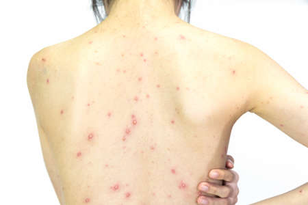Closeup of girl back of blisters, scar and rash caused by Varicella virus or Chicken Pox on white background.