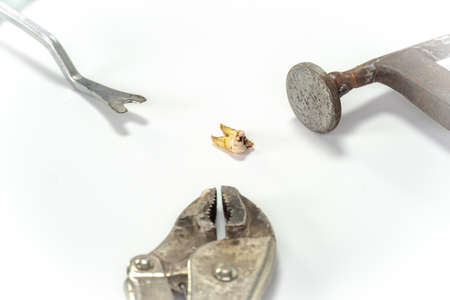 Close-up Of Decay Tooth With Tools Over White Background