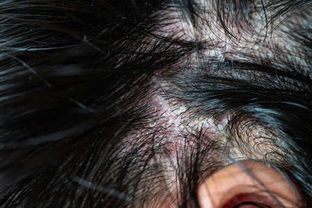 Skin diseases, on the scalp ,Woman with dandruff in her dark hair Reklamní fotografie