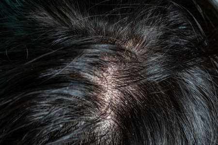 Skin diseases, on the scalp ,Woman with dandruff in her dark hair