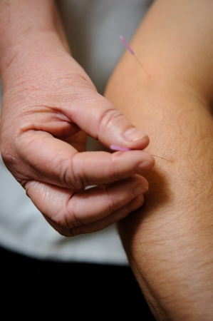 Acupuncture. Needles being inserted into a patients skin photo