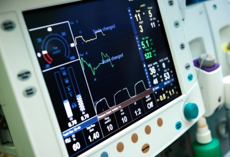Mechanical ventilation equipment photo