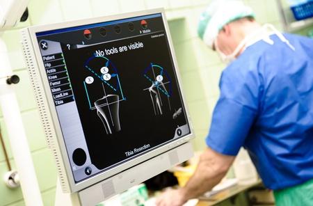 Orvosi ortopédiai eszközök navigációs rendszer és a sebész a háttérben a kórházban