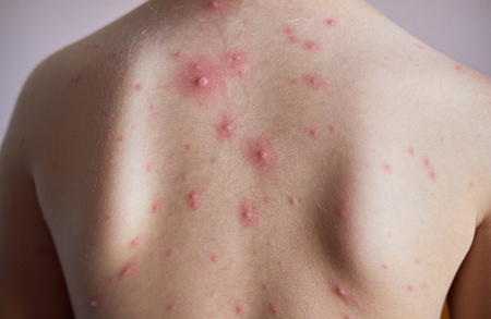 Little girl with a chickenpox on her back  Banco de Imagens