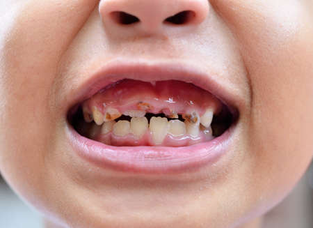 rotten teeth: young man with a teeth broken and rotten