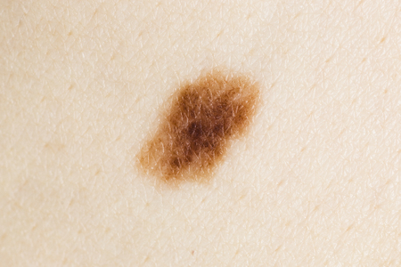 birthmark: Brown Nevus Close-up