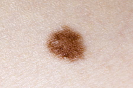 humane: Brown Nevus Close-up