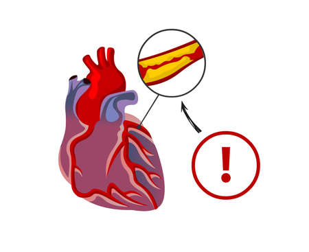 The cholesterol blocks the blood vessels of the heart. Plaques of fat in the blood arteries.