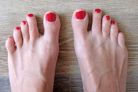 Women's feet with red lacquer top view. Dry skin of the girl, the veins are standing on the legs. Pedicure procedure.