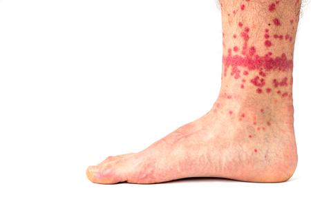 Extreme case of flea bites on humans. Foto de archivo
