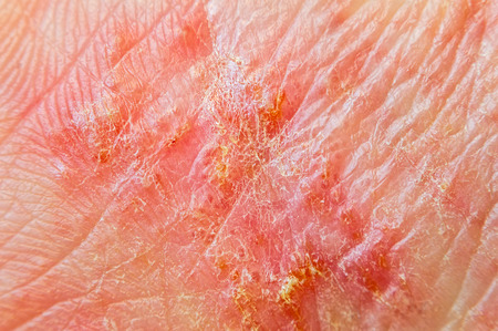 Macro shot of hand eczema Reklamní fotografie - 74482971