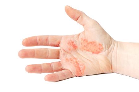 アトピー性皮膚炎の手の苦しみのクローズ アップ写真