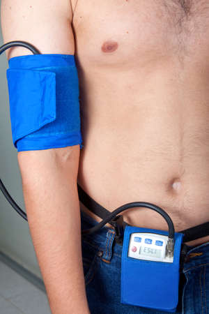 tachycardia: Holter Monitor on a male patient