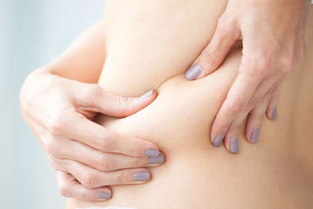 lymphatic drainage: Localized fat in woman back Stock Photo
