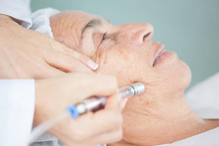 고위 여성의 얼굴에 미세 박피술 치료 스톡 콘텐츠