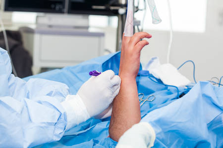 Orthopedic surgeon marking the surgical site just before performing a wrist arthroscopy on a male patient