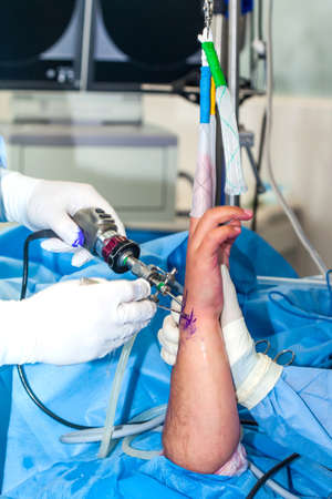 Group of orthopedic surgeons performing a wrist arthroscopy on a male patient