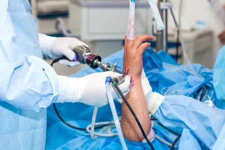 Gruppo di chirurghi ortopedici che eseguono un'artroscopia del polso su un paziente maschio