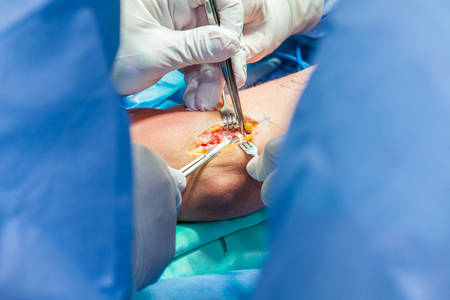 Grupa chirurgów ortopedów wykonujących operację na ramieniu pacjenta