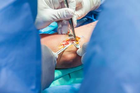 Grupo de cirujanos ortopédicos que realizan cirugía en el brazo de un paciente
