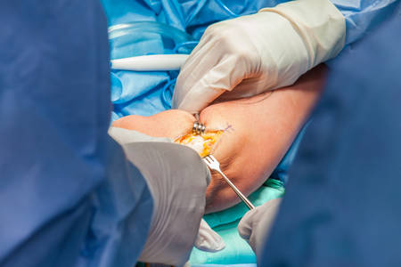Group of orthopedic surgeons performing surgery on a patient arm