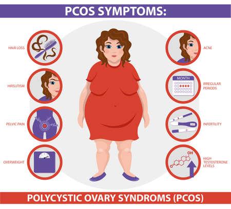 Infographie des symptômes du SOPK. Syndrome des ovaires polykystiques. Infographie vectorielle détaillée. Santé des femmes.