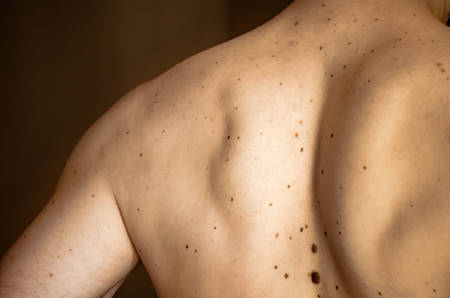 Many moles on the back of a young man. Check benign moles. The effect of the sun on the skin. The concept of health. Close up.