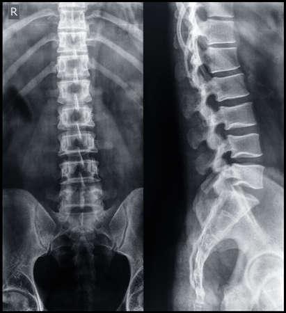colonna vertebrale: X-ray del bacino e della colonna vertebrale. Archivio Fotografico