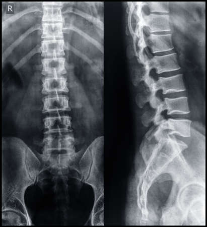 X-ray of the pelvis and spinal column. photo