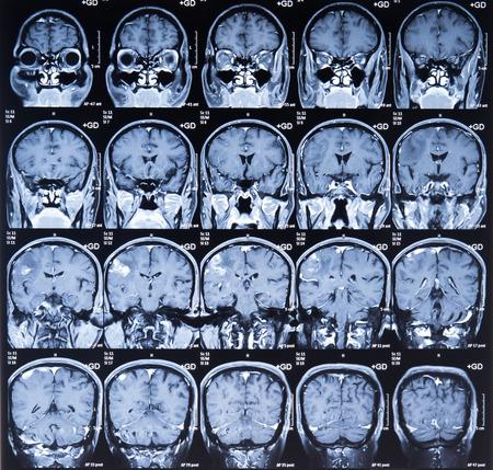 tomography: CT computer tomography scan image