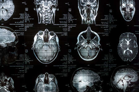 Magnetic resonance imaging of the brain close up. MRI