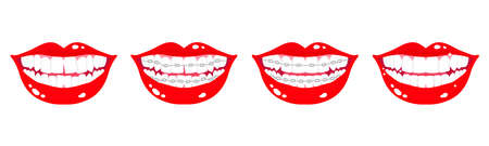 Vector cartoon set of smiling mouths with stages of teeth alignment using orthodontic metal braces on a white background. Dental concept.