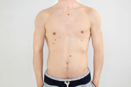 Body of a man with moles Stock Photo